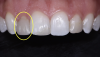 Fig 2. Preoperative (left) and preparation photograph (right) showing volume of tooth structure removed for this indirect treatment of black triangles. (Case courtesy of Dr. Charles Regalado)