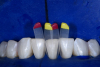 Fig 8. 8-year follow-up showing the possible integrity and color stability of injection-molded restorations. (Case courtesy Dr. David Clark)