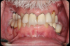 Fig 8. The patient had bite posture problems, caries, periodontal disease, failing restorations and implants, and a history of head-and-neck cancer.