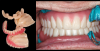 Fig 13. Bad teeth are immediately removed and replaced with good temporary teeth.