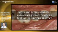 Faster and Better Dentistry, and Air Abrasion-Techniques That Will Build Your Practice Webinar Thumbnail