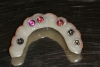 Fig 36. The three denture attachment housings (pink) were picked up in the all-zirconia prosthesis.