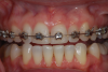 (13.) Retracted view of a patient who had been using tray application of 10% carbamide peroxide for over a year to clean the braces as well as bleach the teeth.