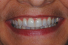 (14.) Smile photograph of the patient in Figure 13 immediately after removal of the arch wires and brackets, showing no white spot lesions or any yellow spots where the the bonded brackets were previously located.