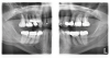 (2.) Patient required an extensive treatment plan, including multiple crowns and fillings in each quadrant.