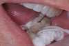 (4.) Patient presented with sensitivity for 6 months on tooth No. 18.