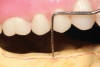 Fig 4. Vertical restorative space is measured from the gingiva (or bone) of the edentulous ridge to the opposing dentition.
