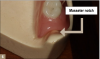 Fig 6. Masseter notch.