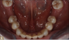 Fig 8. Opposing natural dentition.