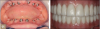 Fig 11. Screw-retained zirconia prostheses (maxillary and mandibular arches).
