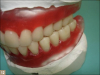 Fig 12. Wax-up in posterior crossbite.