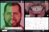 Fig 2. Screenshot of the smile design app. Facial parameters were analyzed, and the final 3D smile design was created.