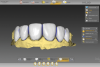 Fig 5. Final design of the restorations in place on the intraoral scan.