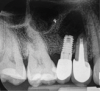 Fig 3. Intraoperative radiograph demonstrating apical resection of implant and tooth.