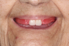 (2.) Maxillary wax rim in a patient's mouth with denture teeth Nos. 8 and 9 set into place.
