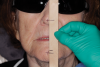 (5.) Full face photograph of patient with sunglasses on and tongue blade measuring the vertical dimension of occlusion and the vertical dimension at rest.