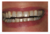 Fig 1. Pretreatment clinical photograph of the frontal smile.