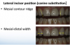 Fig 10. Evaluation of the lateral incisor position (canine substitution).
