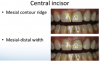 Fig. 8 Evaluation of the mesial contour ridge and the mesial-distal width of central incisors.