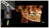 Figure 1. A CBCT scan used in conjunction with implant placement software can help guide successful treatment planning and surgical outcomes.