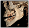 Figure 5. CBCT technology looks beyond the oral cavity to offer the clinician a broader picture that can be useful in diagnosing airway obstructions and disorders of the craniofacial and oropharyngeal anatomy.
