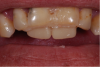 Fig 6. In Case 3, the denture teeth were bonded in place to determine the new incisal edge position of the central incisors.