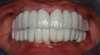 Full-arch prosthesis showing minimal-to-no plaque around both the top and bottom peri-implant tissues after oral irrigator use.