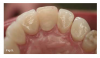 Fig 5 and Fig 6. All-ceramic restorations (Fig 5) and opposing dentition wear (Fig 6) produced by all-ceramic feldspathic restorations.