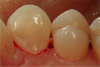 Fig 4 and Fig 5. A matrix now could easily be placed, and the Class III composite filling could be completed. Reestablishment of gingival tissues should occur in about 14 days.
