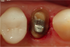 Fig 9. The electrosurgery unit was used to trough around the palatal aspect of the tooth, exposing a small amount of the root surface to the cast core.